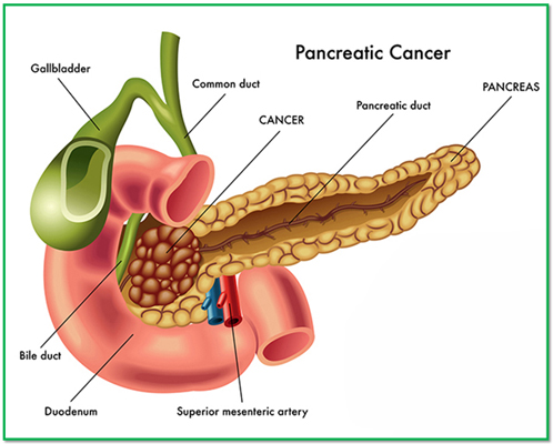 Pancreatic cancer spreads to liver